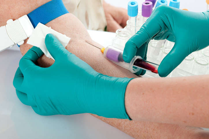 Tips for a Successful Blood Draw