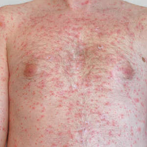 Shingles Prevention and New Vaccines on the Horizon