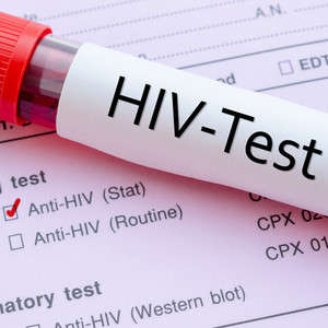 What Are My Options for HIV Blood Testing?